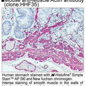 414241_414242_SSAP(M)_Muscle Actin
