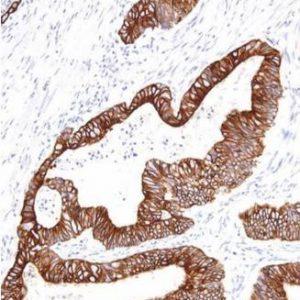 human cytokeratin 18