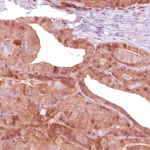 BG8-LewisY-IHC517-Thyroid-Cancer